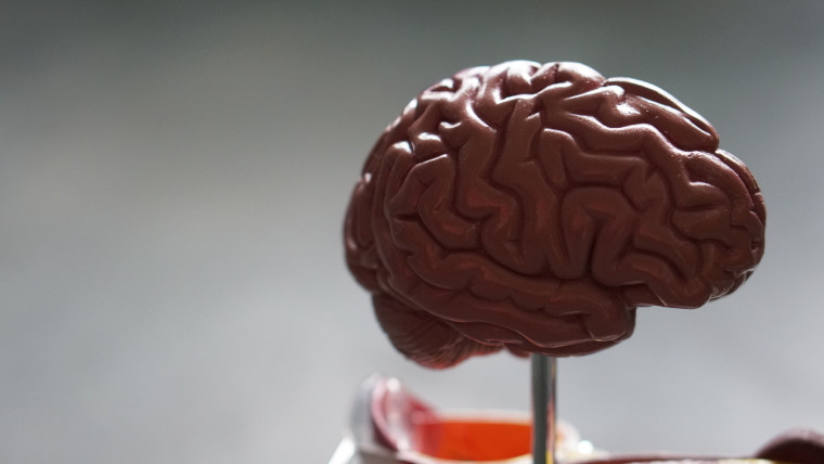 A plastic brain on a metal stand