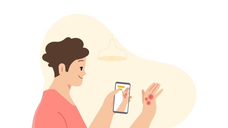 A graphic of a person using their phone camera to detect skin conditions