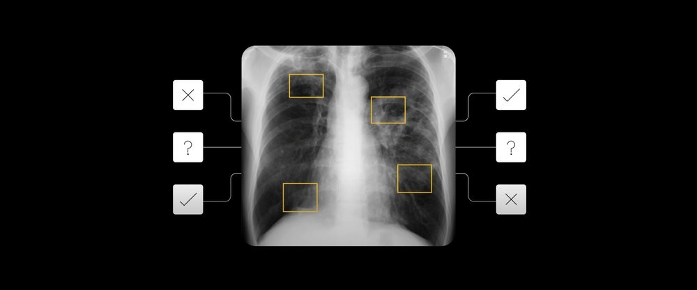 An x-ray showing AI detecting signs of TB